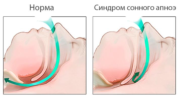 Синдром обструктивного апноэ - причина