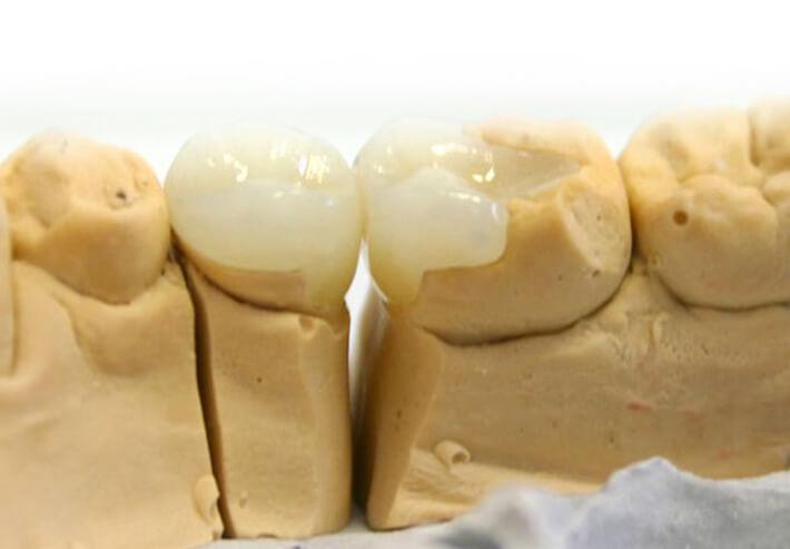 Восстановление и реставрация зубов