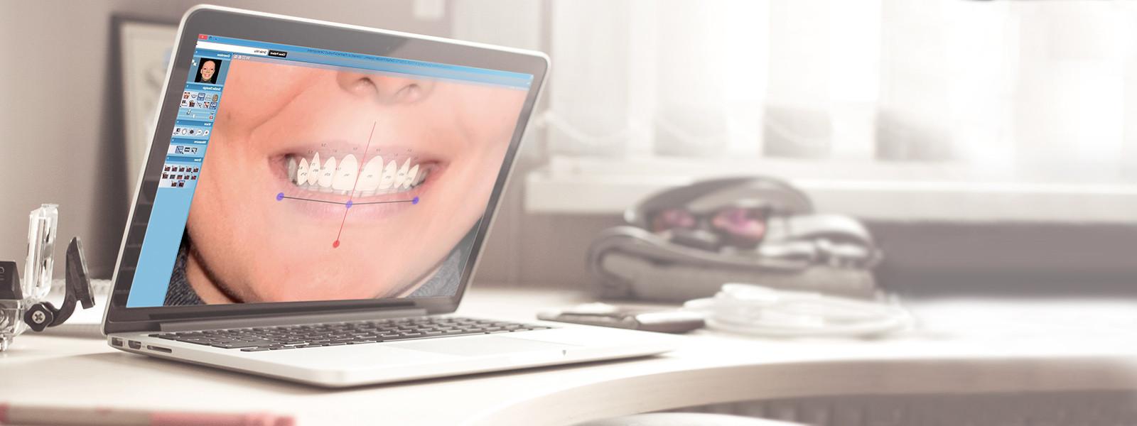 Впервые на Дальнем Востоке! Программа №1 для дизайна Вашей идеальной улыбки!